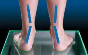 Overpronated Foot Motion